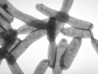 Oakland Co. report uptick in Legionnaires' cases