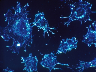 New immunotherapy treatment attacks cancer cells